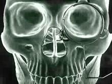 human skull xray